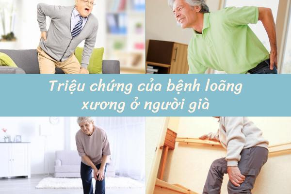 Bệnh loãng xương ở người già, Bệnh loãng xương có nguy hiểm không, Triệu chứng của bệnh loãng xương, Bệnh loãng xương nên ăn gì, Nguyên nhân loãng xương, Thực phẩm chống loãng xương