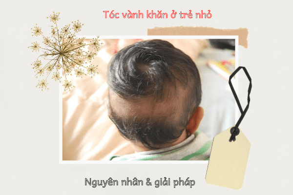 Bé 2 tuổi rụng tóc vành khăn, Cách chữa rụng tóc vành khăn ở trẻ, Hình ảnh rụng tóc vành khăn, Bé 15 tháng rụng tóc hình vành khăn, Hình ảnh trẻ rụng tóc hình vành khăn, Rụng tóc ở trẻ sơ sinh, Tóc vành khăn ở trẻ sơ sinh